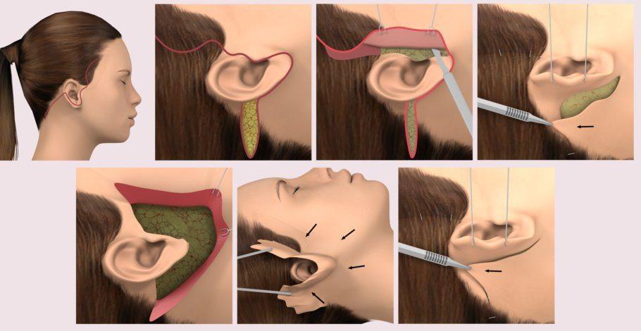 Facelifting & Gesicht straffen: Minilifting, Stirnlifting, SMAS ...