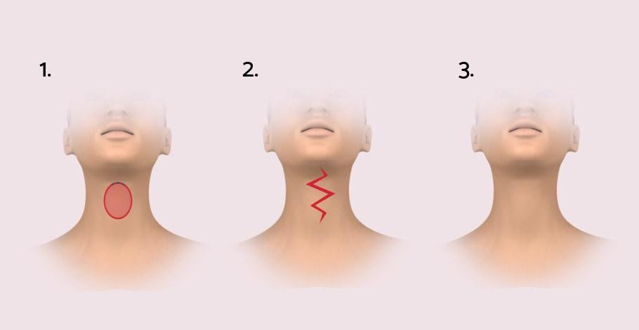 was verursacht kreppige Haut am Hals