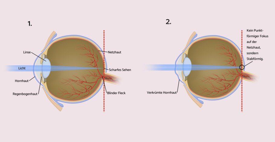 hornhautverkr mmung astigmatismus kontaktlinsen lasern. Black Bedroom Furniture Sets. Home Design Ideas