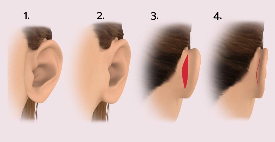 Ohren anlegen & Okrenkorrektur: Ohren anlegen